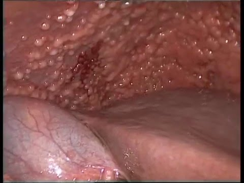 Confluent and reticulated papillomatosis groin
