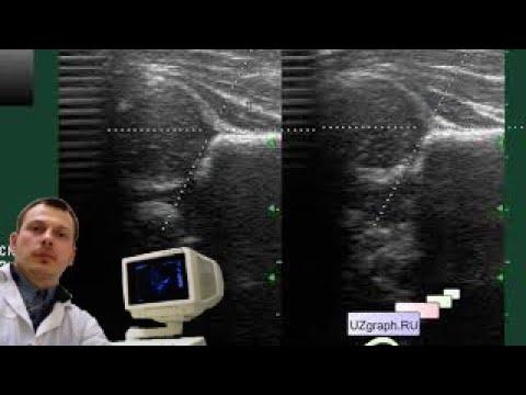 Лекция: УЗИ скрининг тазобедренных суставов у грудных детей. Базовый Уровень
