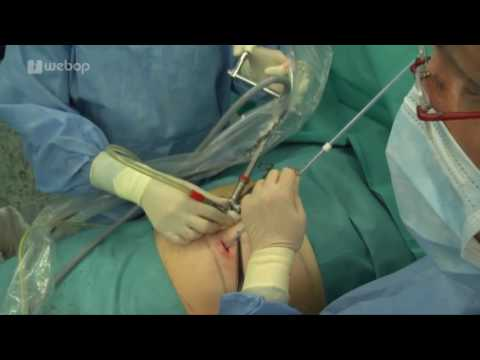 Novosibirsk Behandlung von Prostatitis in einer Sitzung Novosibirsk Klinik 1 Bewertungen
