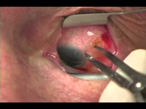 Műtét utáni ajánlások a látás helyreállítására