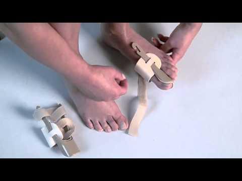 Kobiece stopy stłuczki