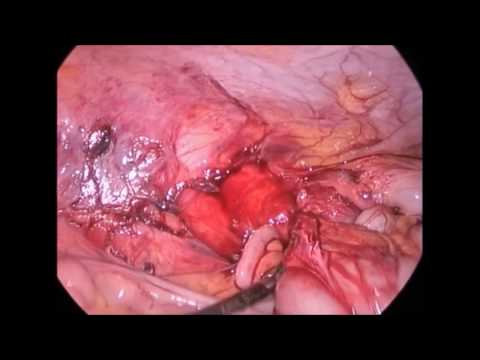 Escherichia простатата