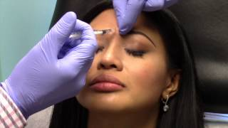 Botox for Prevention of Lines and Wrinkles in Young People Bethesda Maryland