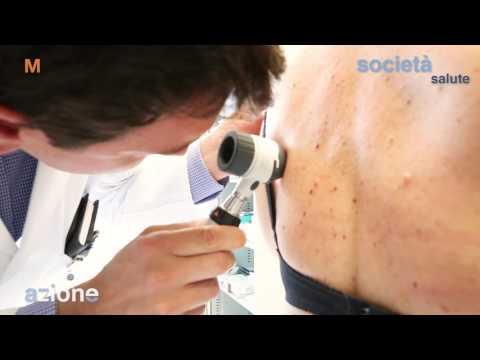 Eczema di disgidrotichesky o trattamento disgidroz