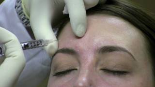 Botox Injection Technique for Wrinkle Reduction