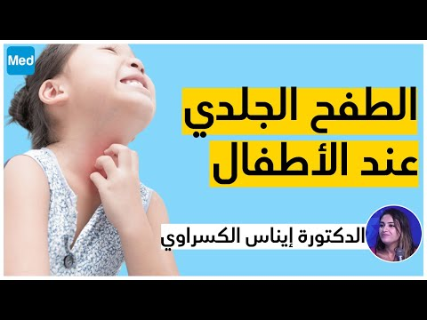 الطفح الجلدي عند الأطفال
