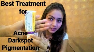 Best Treatment For Acne,Dark Spot And Pigmentation | Glycolic Peel At Home |