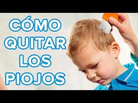 Cómo quitar los piojos y liendres, vídeo práctico