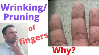 Wrinkling(Wrinkle)(Pruning)of the fingers.Is it normal/Abnormal?What is the cause for prune fingers?