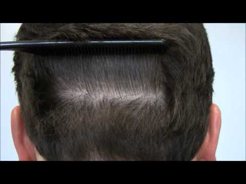GREAT HAIR TRANSPLANT SCAR from a Hair Restoration Specialist
