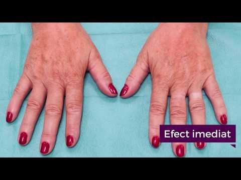 Recenzii despre tratamentul artrozei în ungher