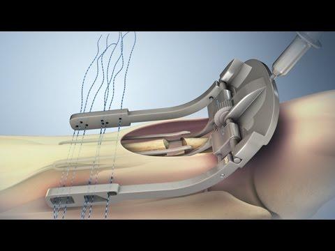 Csípőízület artrózisával járó munka