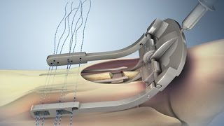 Achilles Tendon Rupture and Repair | Nucleus Health