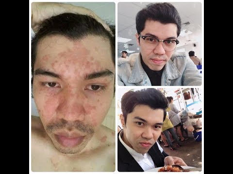 รูปภาพ neurodermatitis seborrheic