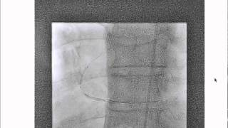 How to deliver balloon and stents during complex coronary interventions