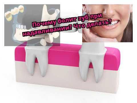 Почему болит зуб при надавливании? Что делать?