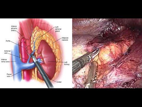 Maladies et symptômes du pénis