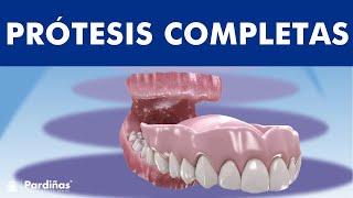 Prótesis completa removible o dentadura postiza -  Información y cuidados ©