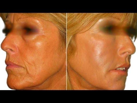 Comment correctement faire les masques pour la personne à la peau problématique