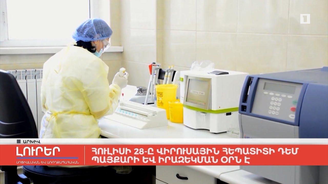 Հուլիսի 28-ը Վիրուսային հեպատիտի դեմ պայքարի և իրազեկման օրն է