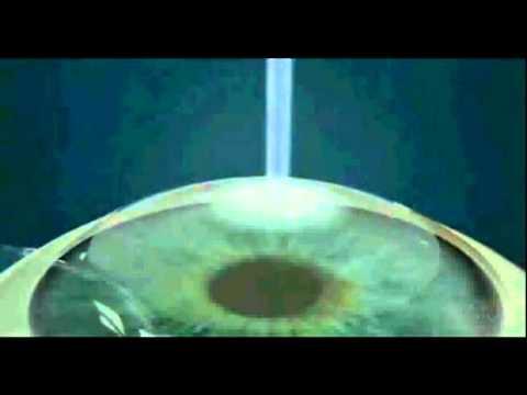 Les moyens de léloignement des astérisques vasculeux