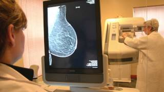 3D Breast Tomosynthesis / 3D Mammography