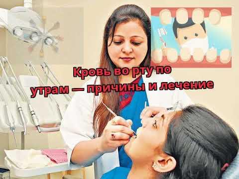 Витафон лечение простаты отзывы