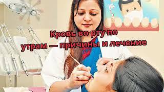 Кровь во рту по утрам — причины и лечение
