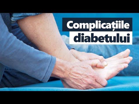 Medic tratamentul artrozei piciorului