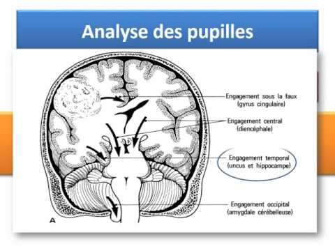 Syndrome urinaire dans lhypertension