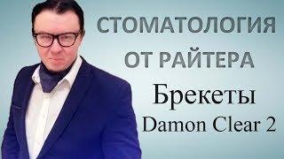 Брекеты Damon clear 2: стоимость, установка и отзывы.