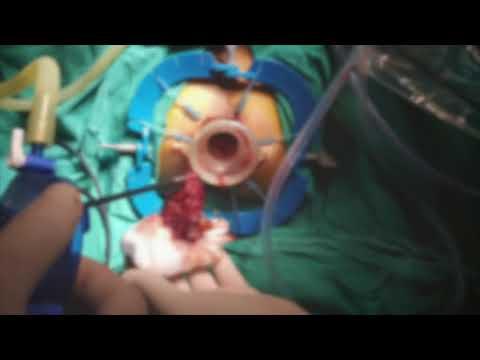Kann in dem Samen der Prostata Massage Blut erscheinen