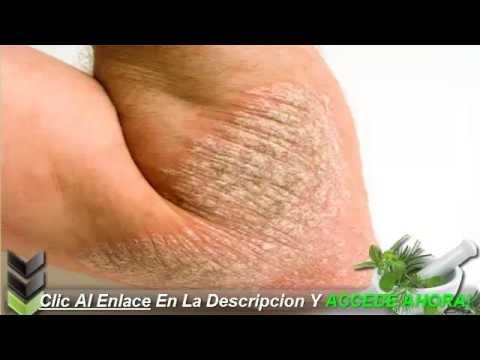 Atopichesky la dermatitis de la causa los síntomas