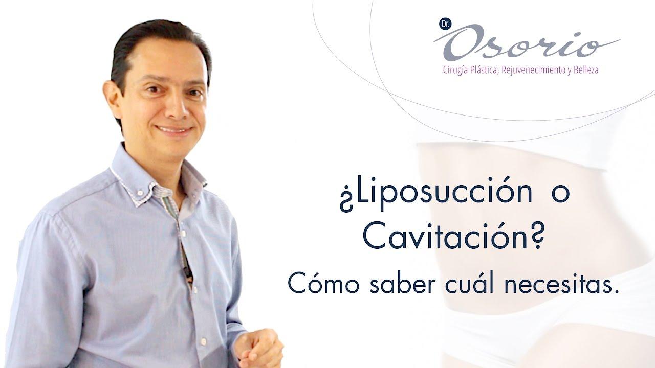 Lipoescultura. Capítulo 1: ¿Liposucción o Cavitación? Cómo saber cuál necesitas.
