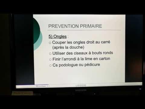 Les effets du diabète gestationnel grossesse