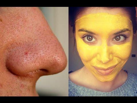 È possibile mangiare semi di girasole a eczema