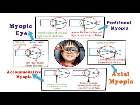 Torna a látás javítására asztigmatizmussal