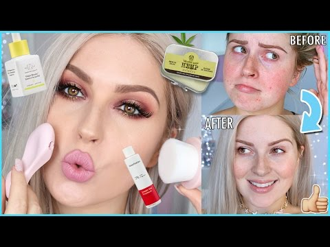 Easy Skincare Routine! 💕 How To Clear ACNE & Get FLAWLESS Skin!