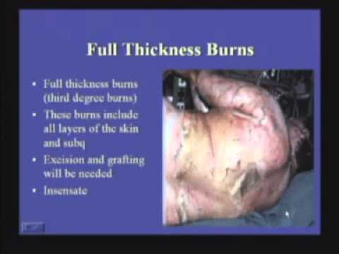 Initial Management of Burns - B. Potenza, MD