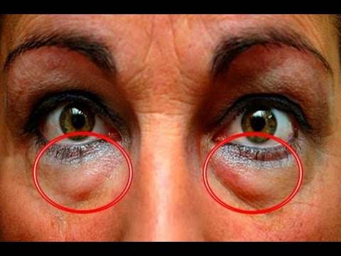 Маски по глазами от глубоких морщин