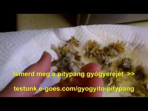 A vállízület szubakrómiás bursitisének kezelése