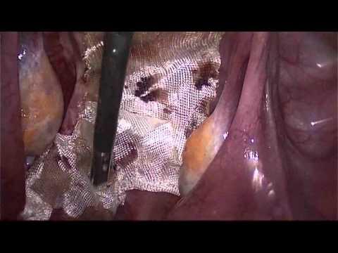 Krónikus és akut prosztatitis kezelés