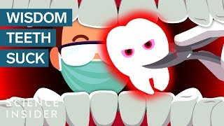 free download Why Do Wisdom Teeth Suck?Movies, Trailers in Hd, HQ, Mp4, Flv,3gp