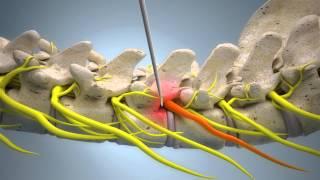 Spinal Nerve Block (EN version)