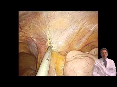 Single Incision Laparoscopic Surgery (SILS)- Radical Nephrectomy for Cancer
