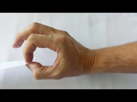 Clinica de artrită de artrită