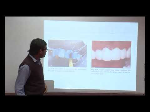 Bleaching of discolored teeth- Nims University