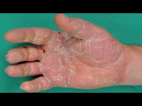 Larticle scientifique sur le psoriasis