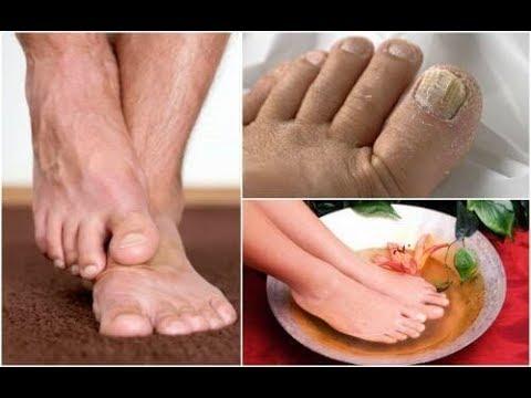 Salitsilovo- maść cynku w leczeniu łuszczycy