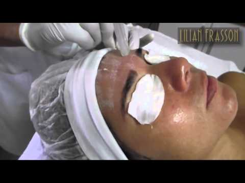 Limpeza de pele + Peeling de Cristal